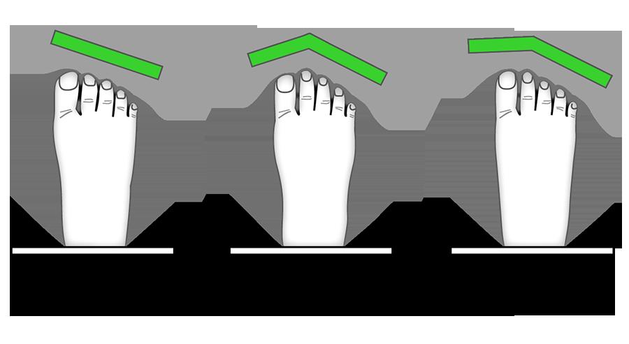 脚背结构图名称
