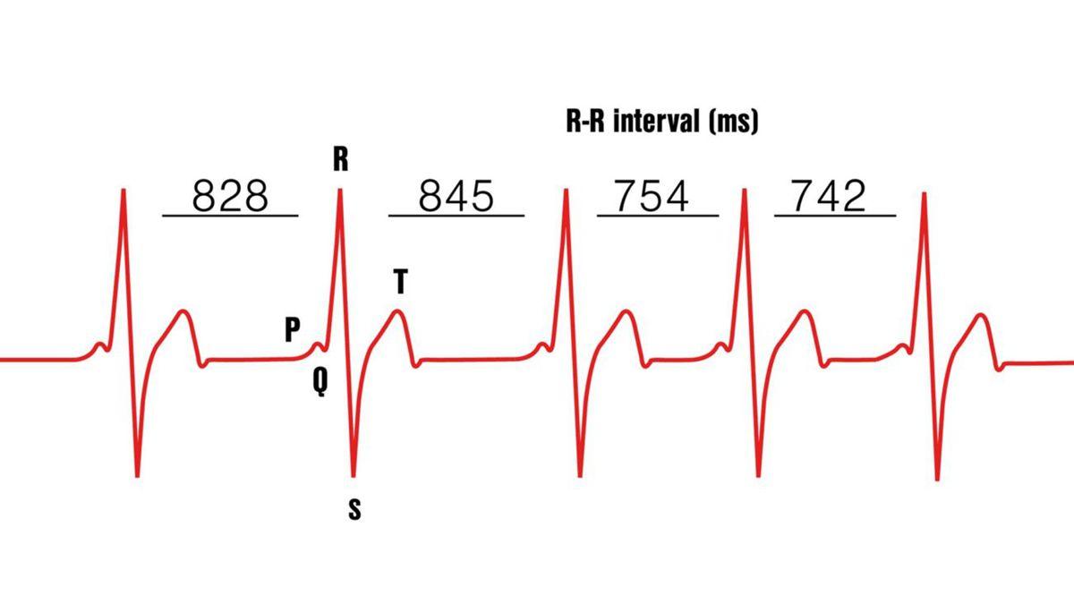 骑行课堂 | 运动手环上的心率变异性(HRV)功能是什么?
